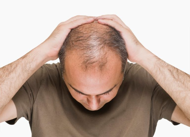 hairfall and dandruff solution